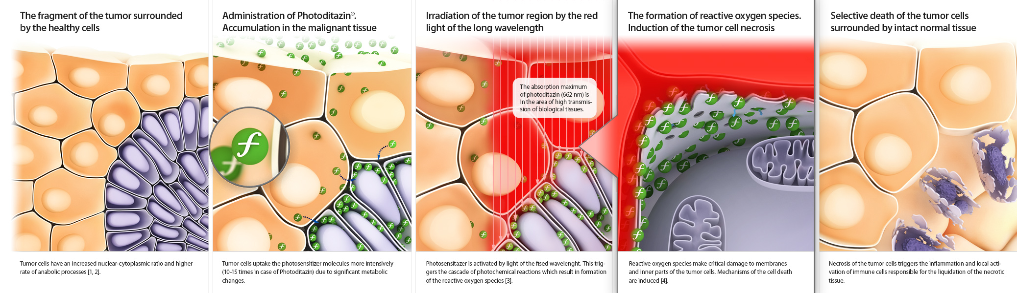 Infographics illustrates the MOA of photosensitizing anticancer drug